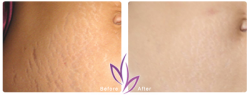 before after BodyTreatment