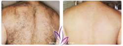 before after LaserHairRemoval